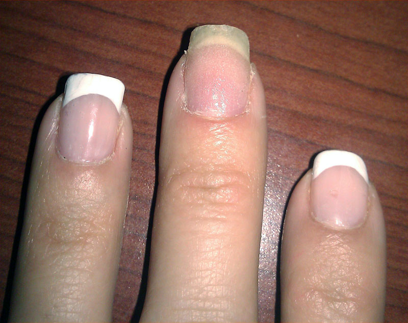 DIY: How to fix a broken nail | notchangingmyname