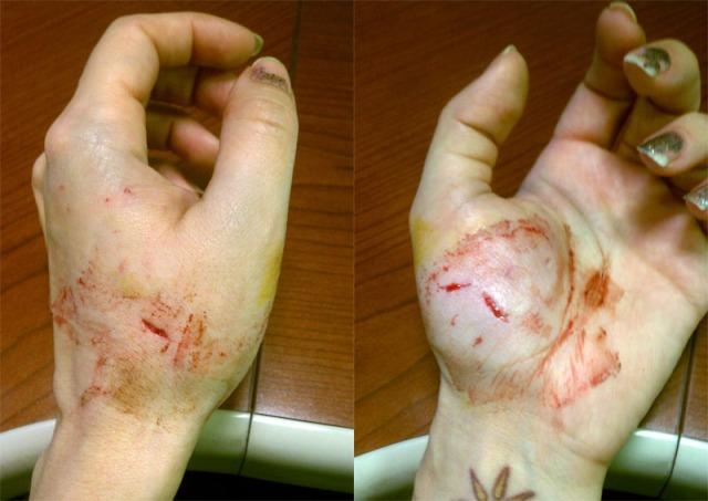 bandage off
